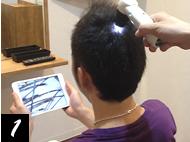 マイクロスコープ+i padによる頭皮チェック